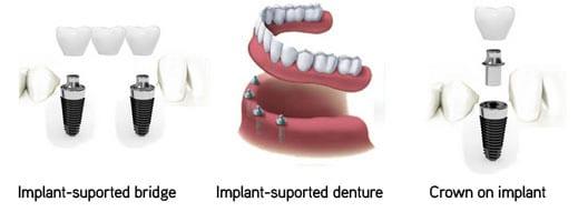 Tandimplantater: Tandbehandling i udlandet