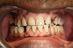 Tandklinik-Ungarn: Tandbehandling i udlandet
