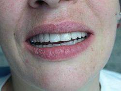 tandkroner efter