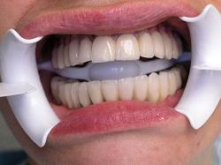 Tandkroner før
