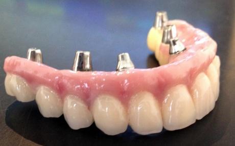 Tandprotese understøttet af implantater