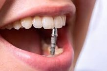 Forskellige implantater.